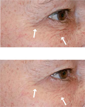 Before-After-Stem Cell Serum Eye Photos
