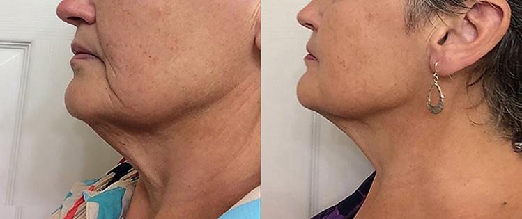 anti-aging-wrinkle-reduction-before-after_1